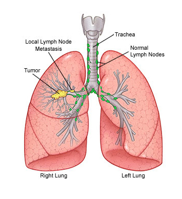 Pulmonology department at baby memorial hospital kozhikode pulmonary hypertension sleep disorders such as sleep apnea and narcolepsy chronic obstructive pulmonary disease copd and lung infections ccuart Images